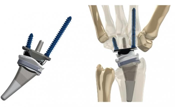 研究人员开发新腕部替代物 据称效果更好、使用寿命更长