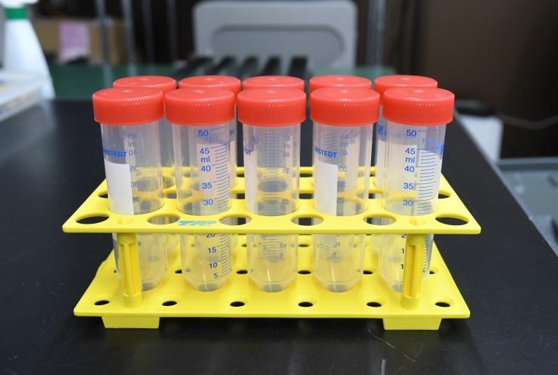 欧博会员开户:日本研发出唾液检测新冠病毒试剂 19日过审 第1张