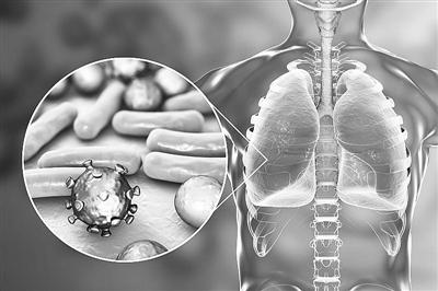 """细菌感染加剧新冠肺炎患者肺损伤? 新""""合影""""技术从免疫细胞中找到线索"""
