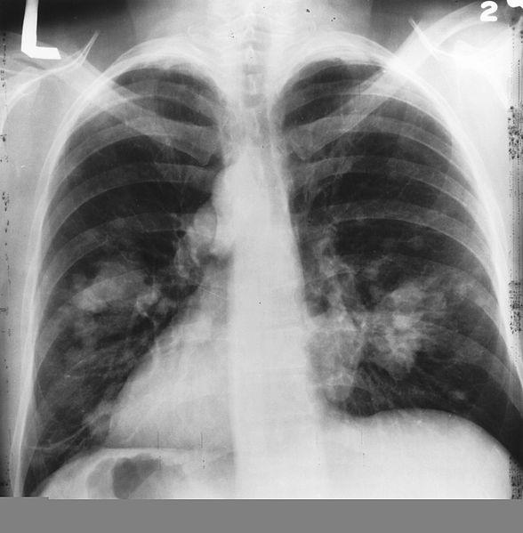 科学家开发全新AI血液测试 无需CT扫描即可发现肺癌