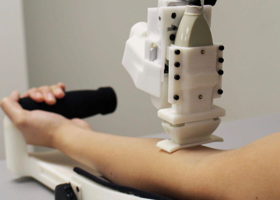 科学家研发自动抽血机器人可以帮医生护士提高效率