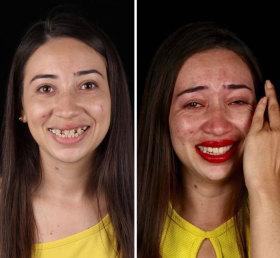 巴西牙医免费为低收入者补牙 帮助他们找回微笑